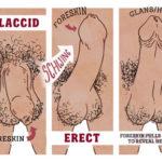 Nhiều nguy hại có thể bị từ bệnh viêm bao quy đầu